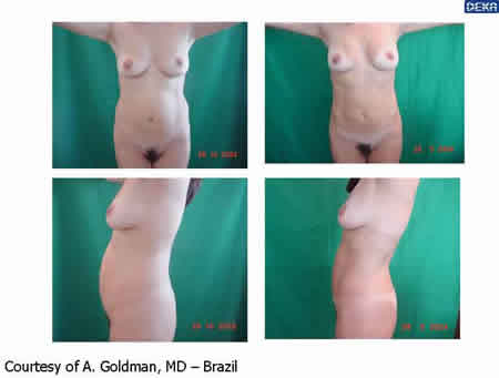 abdomen___reshaping_dr_gold_2