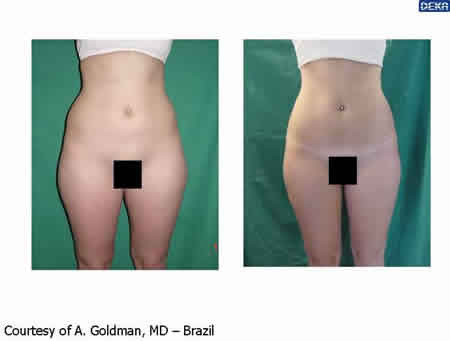 body_reshaping_dr_goldmann_4