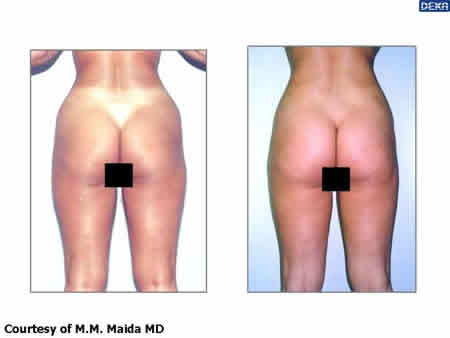 body_reshaping_dr_maida_5