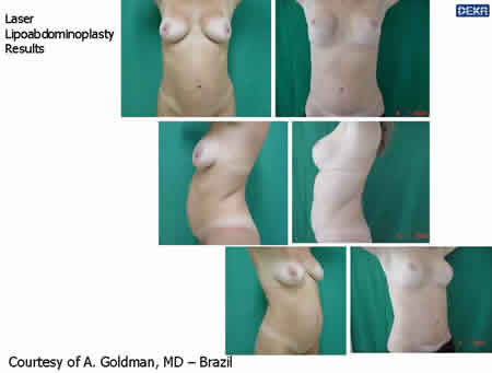 lipoabdominoplasty_dr_goldm_9
