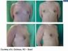 gynecomastia_dr_goldmann_8