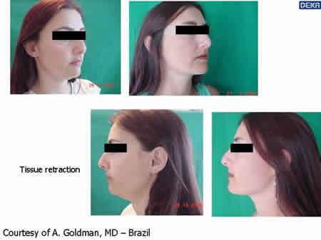 tissue_retraction_dr_goldma_13
