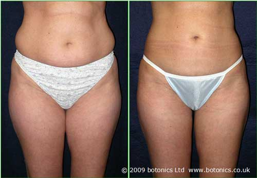 a1_botonics_before_and_after_photo_vaser_lipo_liposelection_female_abdomen