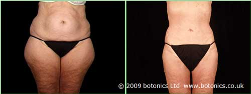 b1_botonics_before_and_after_photo_vaser_lipo_liposelection_female_buttocks_thighs_hips