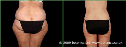 b2_botonics_before_and_after_photo_vaser_lipo_liposelection_female_buttocks_thighs_hips