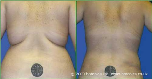 d1_botonics_before_and_after_photo_vaser_lipo_liposelection_female_back_love_handles