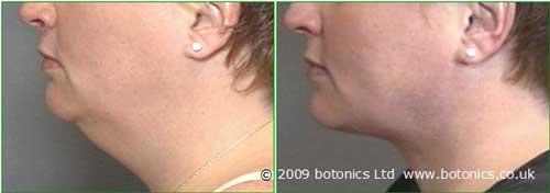 e1_botonics_before_and_after_photo_vaser_lipo_liposelection_female_neck_jawline_face