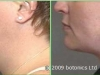 e1_botonics_before_and_after_photo_vaser_lipo_liposelection_female_neck_jawline_face