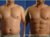g1_botonics_before_and_after_4_months_photo_vaser_hi_def_lipo_liposelection_male_abdomen_love_handles