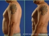 g2_botonics_before_and_after_4_months_photo_vaser_hi_def_lipo_liposelection_male_abdomen_love_handles1