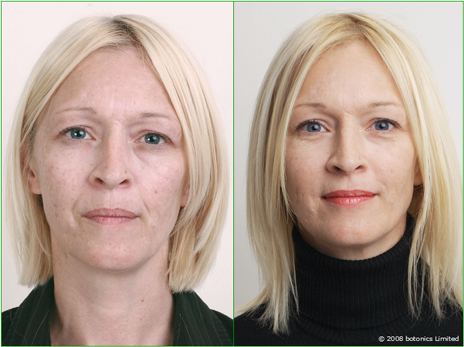 Angela - Before and After