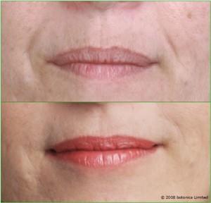 Angela_Before_After_Large_Lips_Botox_Dermal_fillers_Lip_enhancement_Skin_peel_Teeth_whitening_SmartLipo_i