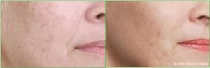 Angela_Before_After_Large_Right_Cheek_Botox_Dermal_fillers_Lip_enhancement_Skin_peel_Teeth_whitening_SmartLipo_e