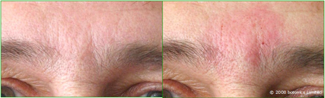 Graham_Large_Before_After_Between_Eyebrows_Dermal_fillers_Nose_to_mouth_Frown_lines_c