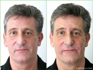 Graham - Before and After