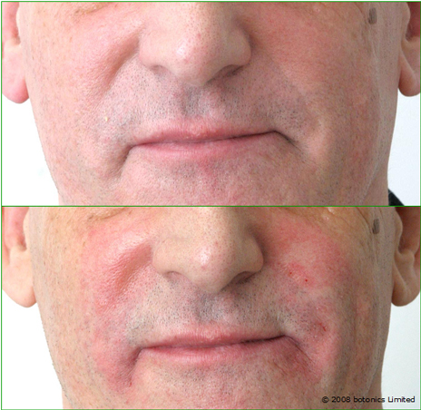 Graham_Large_Before_After_Mouth_Dermal_fillers_Nose_to_mouth_Frown_lines_d