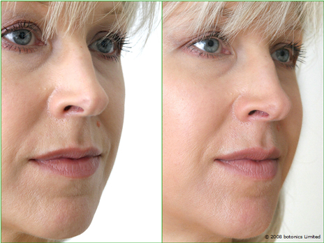 Jan_Large_Before_After_Left_Face_Cheek_enhancement_Dermal_fillers_Lip_enhancement_c