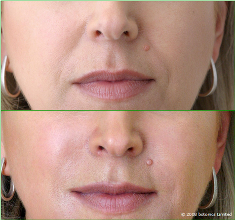 Jan_Large_Before_After_Mouth_Cheek_enhancement_Dermal_fillers_Lip_enhancement_e