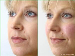 Jan_Large_Before_After_Right_Face_Cheek_enhancement_Dermal_fillers_Lip_enhancement_d