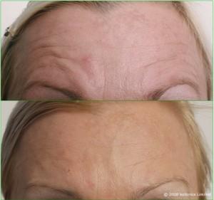 Kaja_Large_Before_After_Forehead_1_Botox_Dermal_fillers_Lip_enhancement_Skin_peel_c