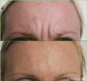 Kaja_Large_Before_After_Forehead_2_Botox_Dermal_fillers_Lip_enhancement_Skin_peel_d(1)