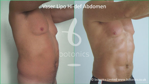 vaser hi def male before after botonics