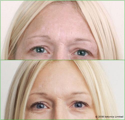 Angela_Before_After_Large_Eyes_Botox_Dermal_fillers_Lip_enhancement_Skin_peel_Teeth_whitening_SmartLipo