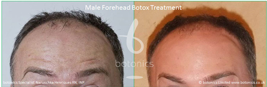 male botox before and after photos