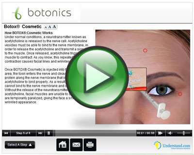 botonics 3D Animation of Botox | Wrinkle Relaxation Injections Treatment