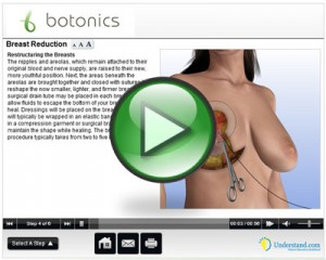 Breast_reduction_3D_animation_thumb