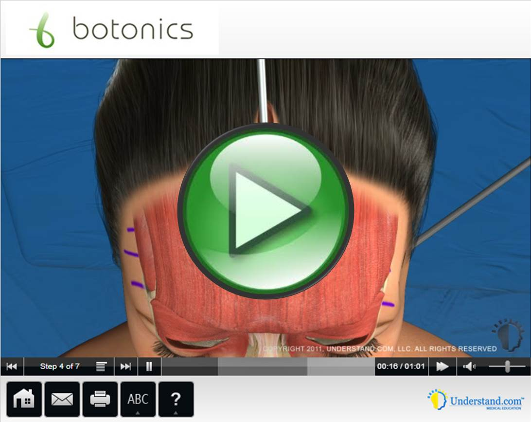 botonics 3D Animation of Forehead Face Lift Procedure