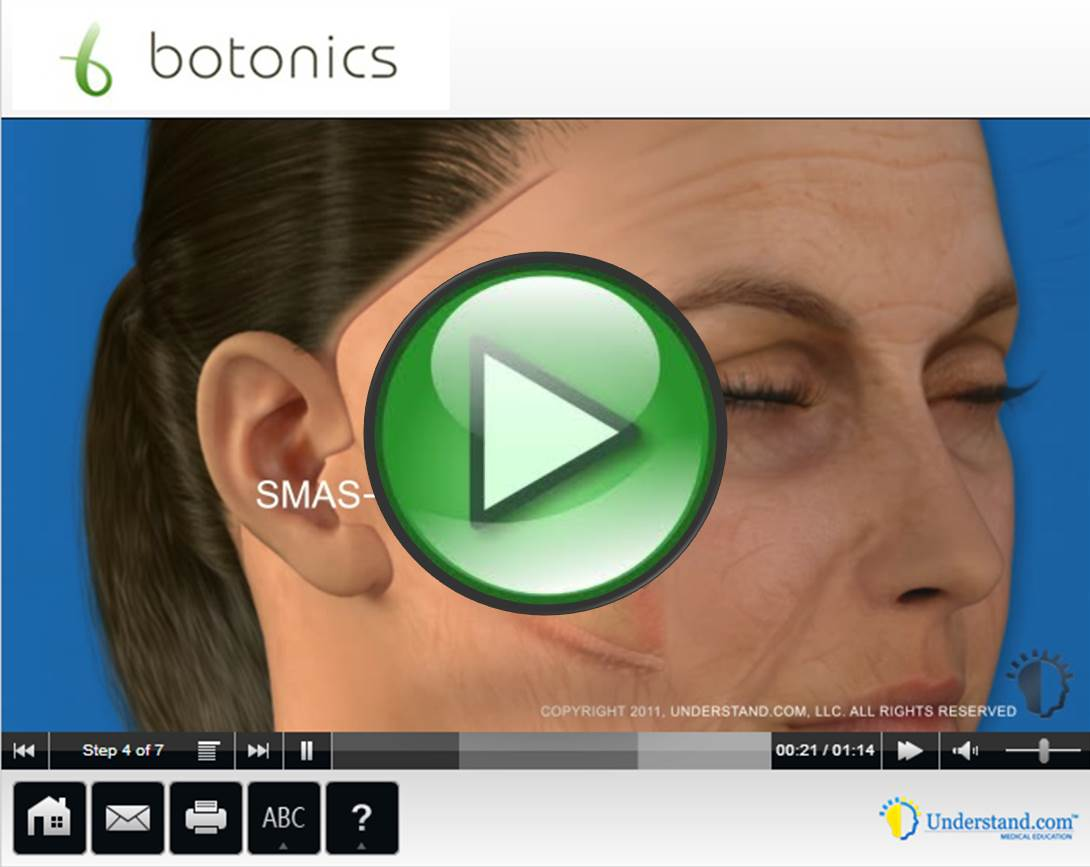 botonics 3D Animation of Lower Face Lift Procedure