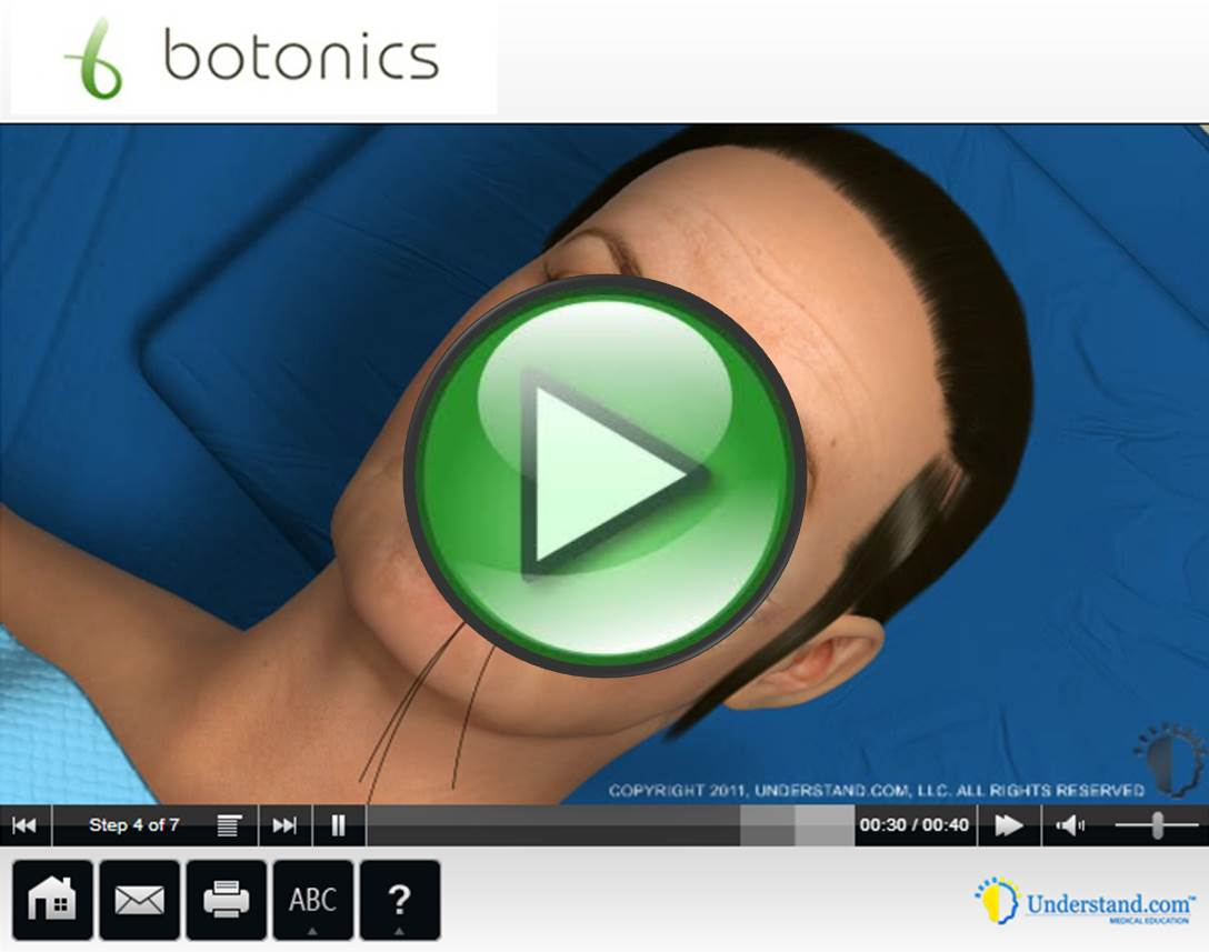 botonics 3D Animation of Mid Face Lift Procedure