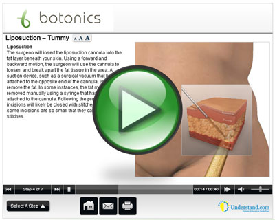 botonics 3D Animation of Liposuction Treatment