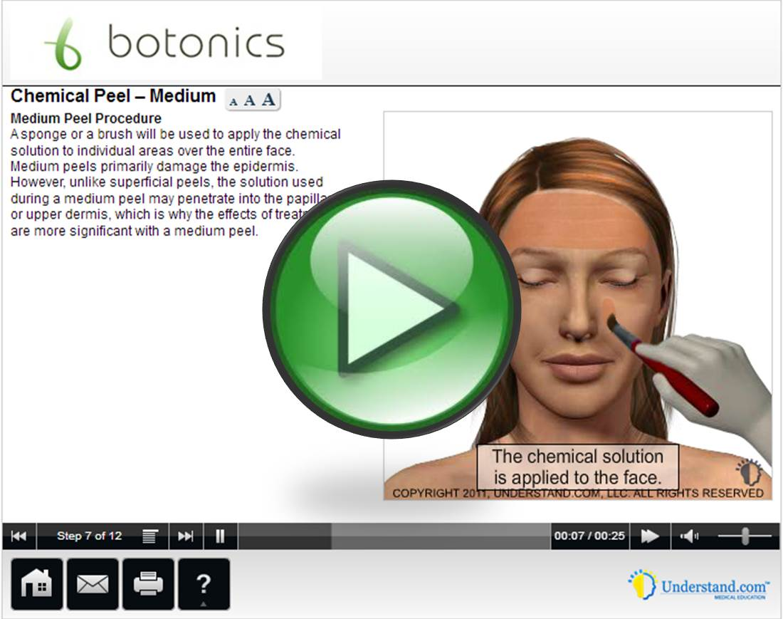 botonics 3D Animation of Medium Skin Peel Treatment