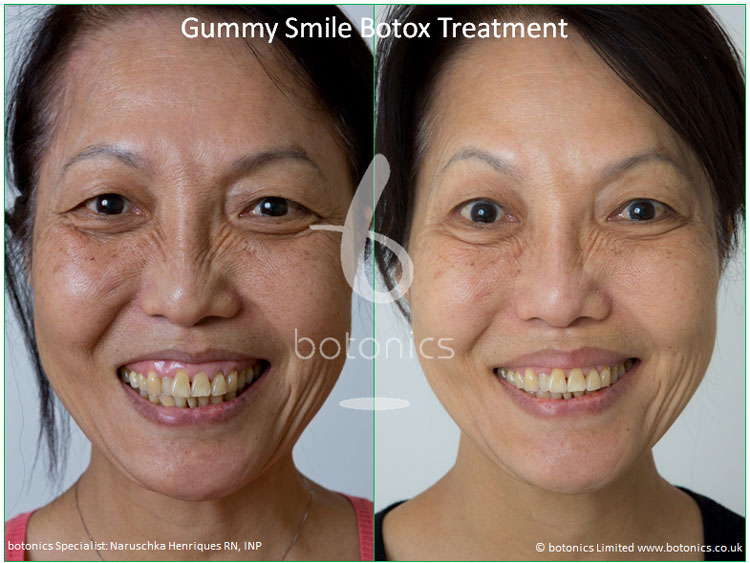 botox treatment for excessive gingival show gummy smile before and after botonics naruschka henriques 1