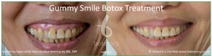botox treatment for excessive gingival show gummy smile before and after botonics naruschka henriques 2