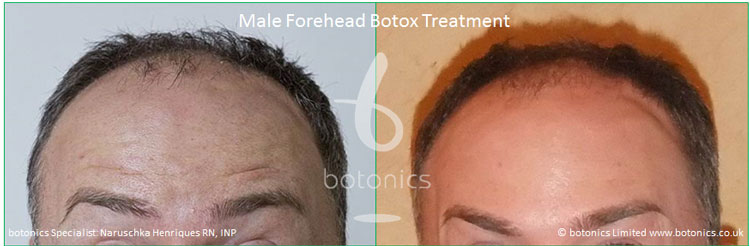 botox male foreheadtreatment before and after botonics naruschka henriques