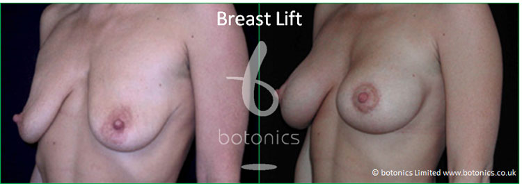 breast lift mastopexy before and after botonics