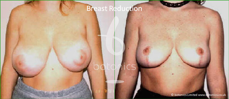 breast reduction mammoplasty before and after botonics