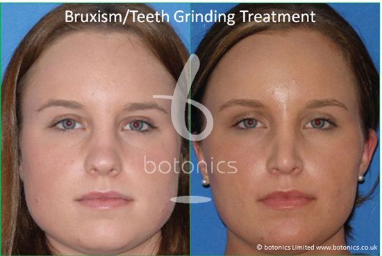 female before and after picture of botox to masseter for bruxism and teeth grinding treatment