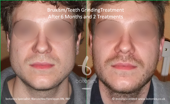 male before and after picture botox masseter jaw muscle treatment for teeth grinding bruxism jaw reduction