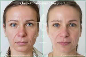 cheek enhancement dermal fillers treatment sub q before and after botonics naruschka henriques 1