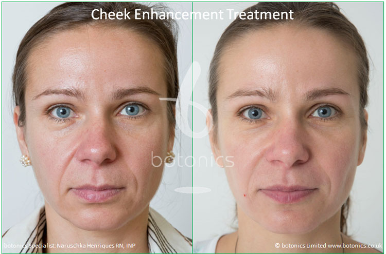 cheek enhancement dermal fillers treatment sub q before and after botonics naruschka henriques 1