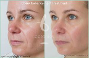 cheek enhancement dermal fillers treatment sub q before and after botonics naruschka henriques 2