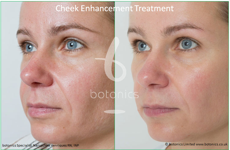 cheek enhancement dermal fillers treatment sub q before and after botonics naruschka henriques 2