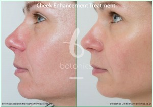 cheek enhancement dermal fillers treatment sub q before and after botonics naruschka henriques 3