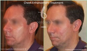 cheek enhancement male pixl cannula treatment sub q before and after botonics naruschka henriques 2