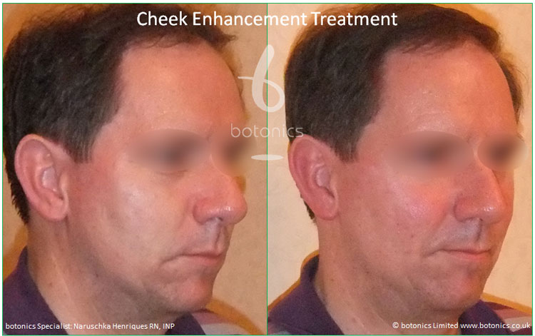 cheek enhancement male pixl cannula treatment sub q before and after botonics naruschka henriques 3