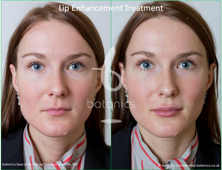 dermal fillers lip enhancement treatment restylane lipp before and after botonics naruschka henriques 1